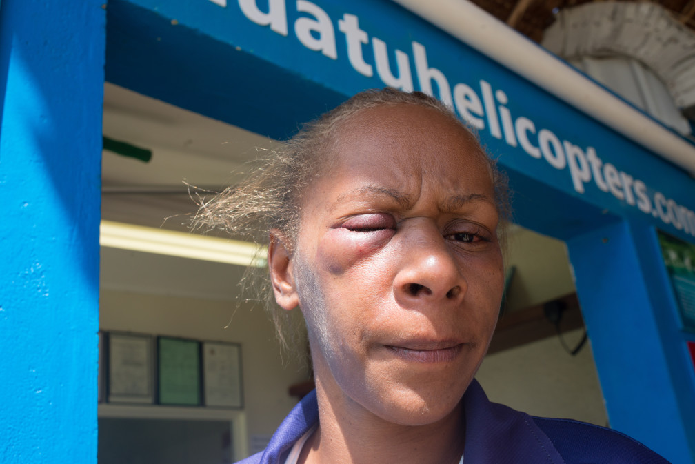 Florence Lengkon was forcibly removed from her place of work, assaulted, threatened and made to apologise for comments made on social media critical of the behaviour of local taxi and bus drivers.